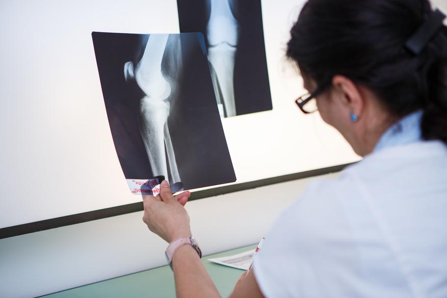 Clinica Medicaltop Bacau - cabinete medicale specializate - Ortopedie