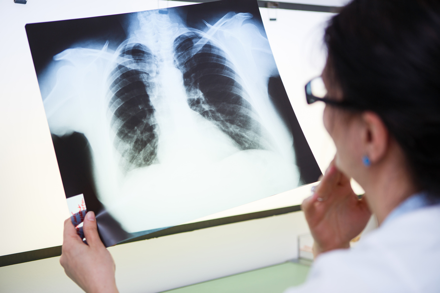Clinica Medicaltop Bacau - cabinete medicale specializate - Pneumologie / Somnologie (Tulburari de somn)